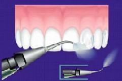 Čištění zubního kamene